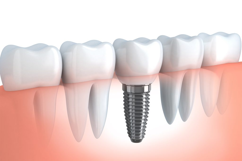 Dental implant, Greenville Dentist, Cosmetic Dental, Greenville South Carolina