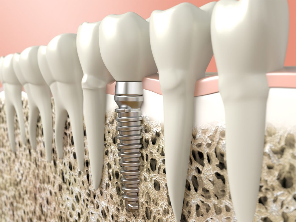 Cosmetic Restoration Services, Dental Implant, Greenville Dentist, Cosmetic Dental