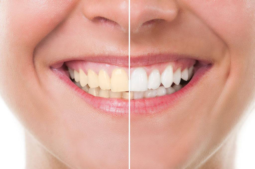 Teeth Whitening, Cosmetic Dental, Home, Greenville Dentist