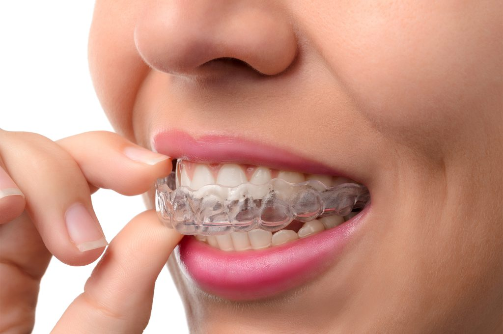 Invisible Braces, Appliance Therapy, Greenville Dentist, Cosmetic Dental, Greenville South Carolina