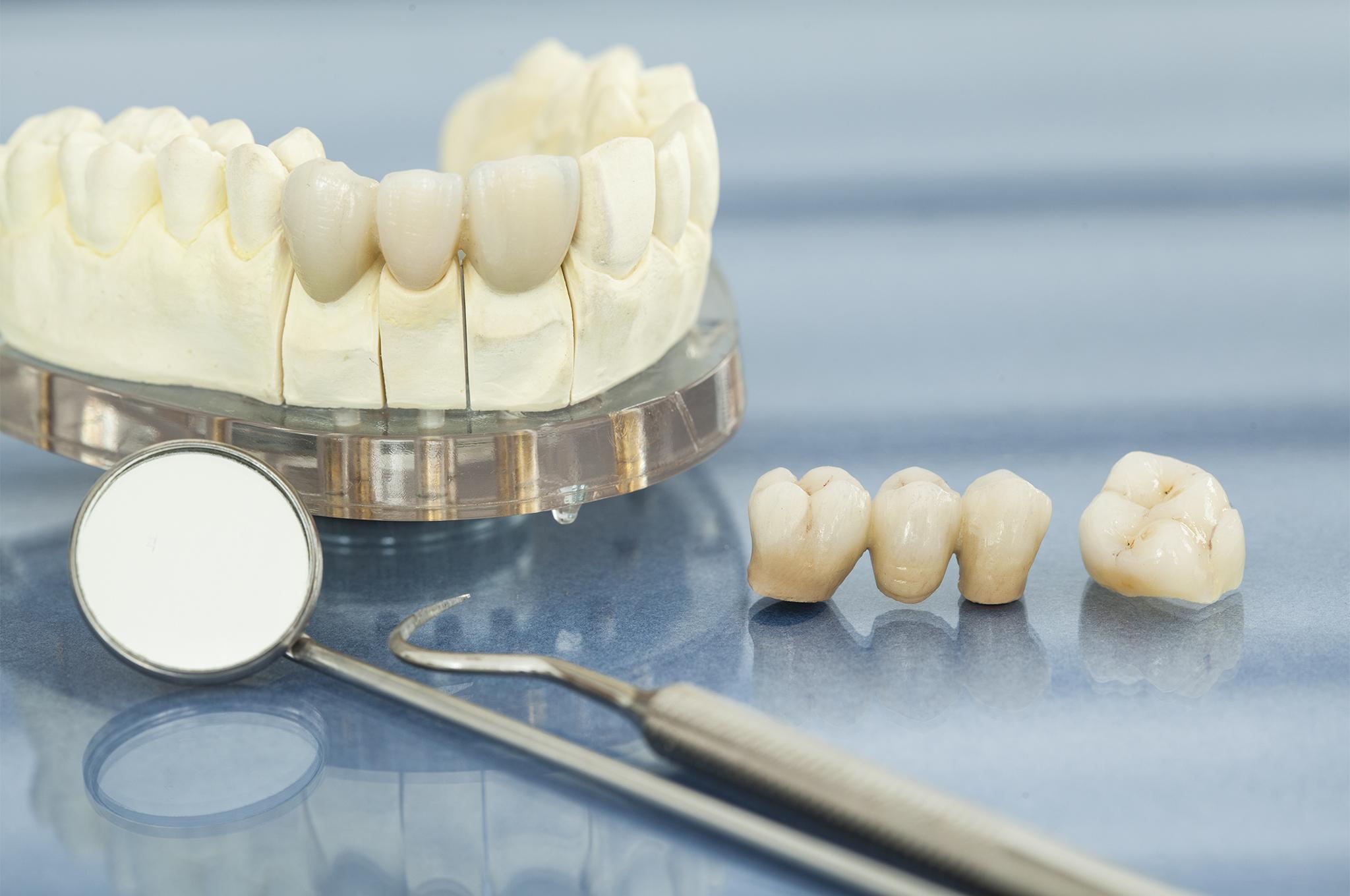 Restorative Work, Dental health care, Greenville Dentist, Cosmetic Dental, CCDS
