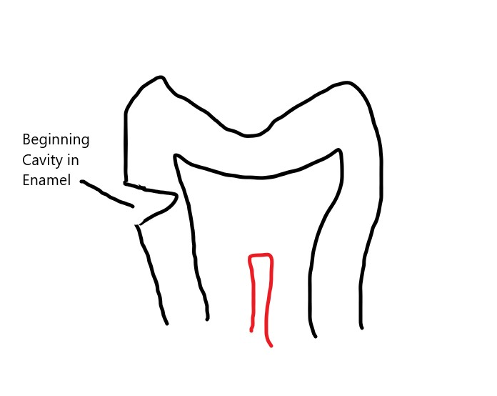 Cavity, Greenville Dentist, Cosmetic Dental, Dental Health